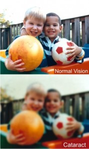 normal vision and cataract clouded vision comparison