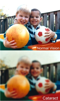 demonstration of normal vision and cloudy vision caused by cataracts, from NEI-NIH